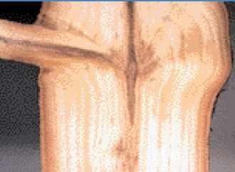 Relation entre le tronc et une branche, origine des noeuds dans le bois.