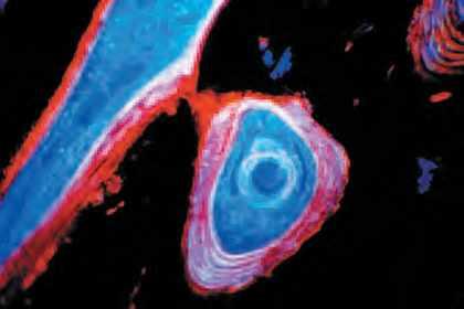 L'ostéomalacie est à l'adulte ce qu'est le rachitisme chez l'enfant.