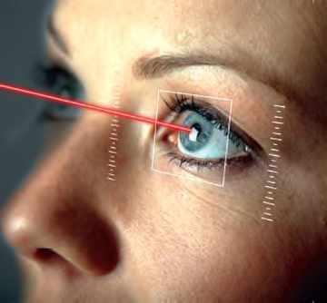Opération à l'oeil par laser
