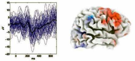 Une analyse statistique du fonctionnement du cerveau.