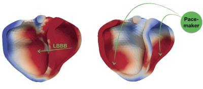 Cœur avec ou sans pacemaker (calcul de l'effet)