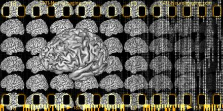 Base d'images de cerveau
