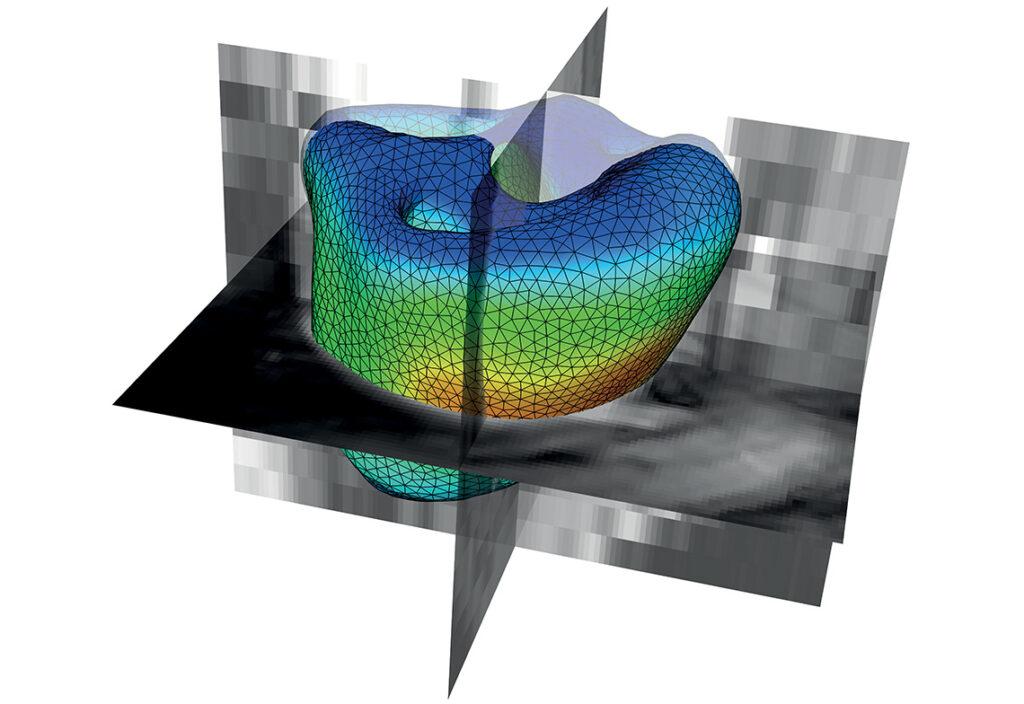 Mécanique en cardiologie : simulation cardiaque par IRM