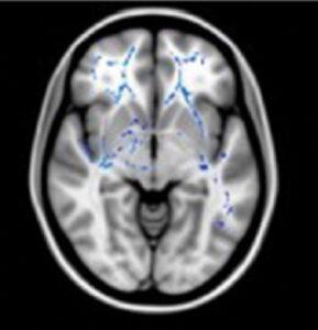 IRM de diffusion : les marques bleues traduisent une plus forte densité axonale chez les HP que chez les personnes à intelligence moyenne. Ici chez des haut-potentiel à profil homogène.