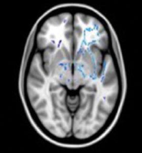 Les haut-potentiel avec un profil hétérogène, c'est-à-dire bien meilleurs dans les tests d'intelligence verbale que dans ceux mesurant l'intelligence non-verbale, montrent une forte asymétrie en faveur de l'hémisphère gauche. D'après Nusbaum et al., 2017.